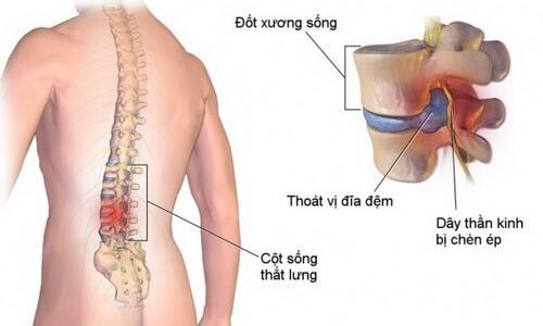 Thoát vị đĩa đệm là một trong những nguyên nhân gây đau thắt lưng